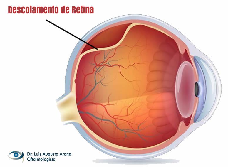descolamento de retina em Curitiba