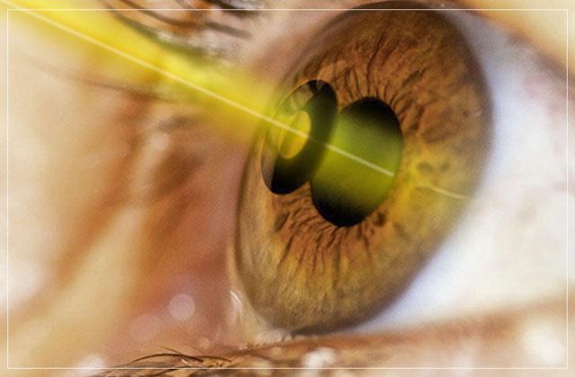 tecnicas de tratamento de doenças de retina com laser