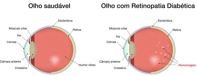 Olho saudável e com retinopatia diabética