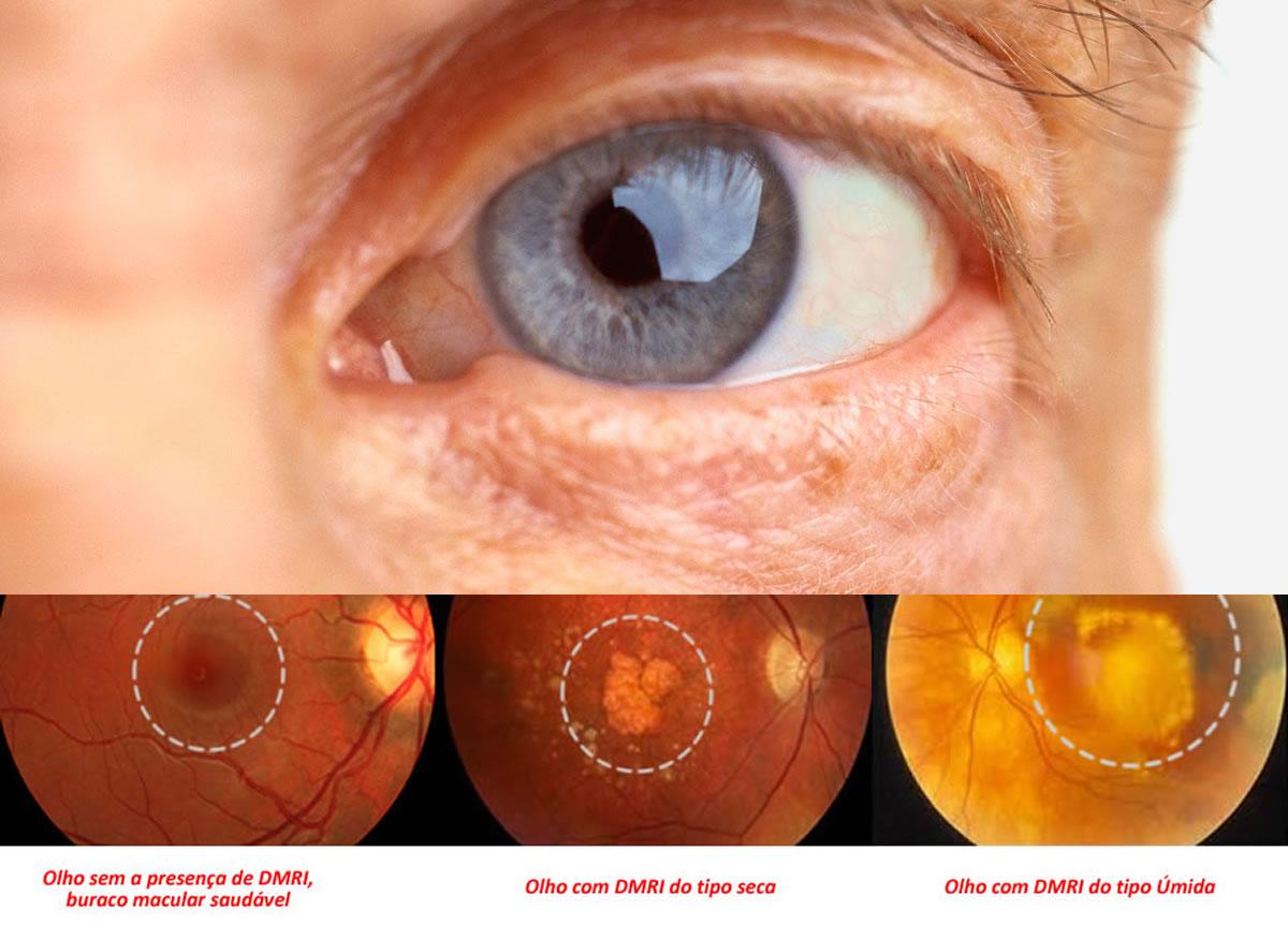 dmri curitiba tratamento degeneração macular da visão