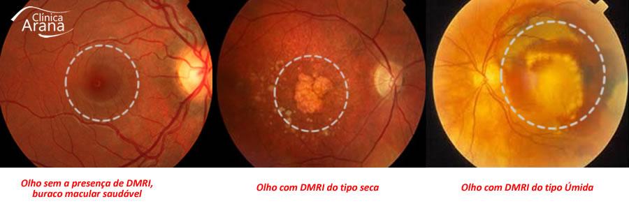 Degeneração Macular de Idade (DMRI) em Curitiba