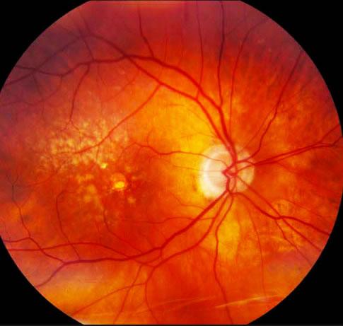 degeneração macular relacionada a idade tratamento curitiba