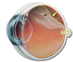 descolamento de retina o que é causas e tratamento em curitiba